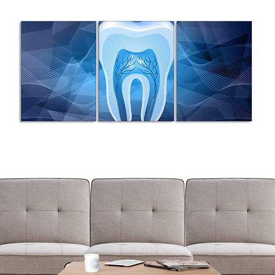 Quadro dentista dente azul decorativo